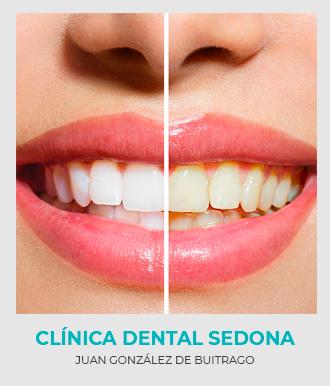 Blanqueamiento Dental en Clínica Sedona con los mejores precios