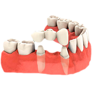 Prótesis dentales en Clínica Dental Sedona