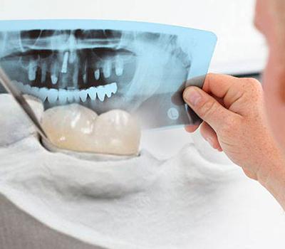 reconstrucción dental en Clínica Sedona con los mejores precios