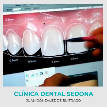 Diseño Digital de la Sonrisa en Clínica Dental Sedona